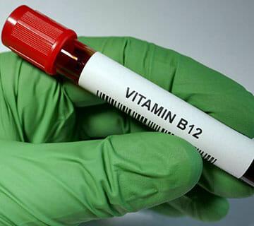 vitamin b12 teströr